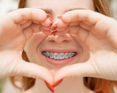Image Close-up portrait of a young red-haired woman with braces on her teeth holding her hands in the shape of a heart. Orthodontic appliances for a perfect smile.
