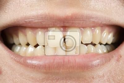 Dents d'espacement