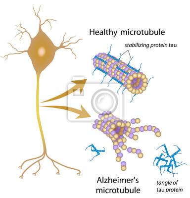 Désintégration des microtubules dans la maladie dalzheimer peintures ...