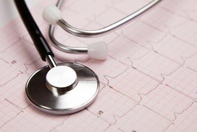 Image Rapport médical et cardiogramme