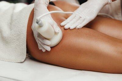 Image Ultrasound Cavitation Body Contouring Treatment