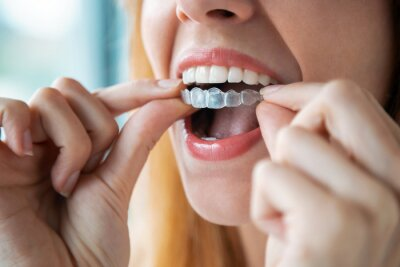 Image Woman wearing orthodontic silicone trainer. Invisible braces aligner.
