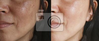 Papiers peints Avant et après le traitement facial. Visage avec du mélasma et des taches brunes et des pores ouverts.