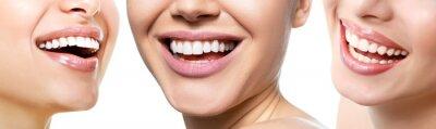 Papiers peints Beau large sourire de jeunes femmes fraîches avec de grandes dents blanches en bonne santé, isolées sur fond blanc. Sourire des femmes heureuses. Rire la bouche féminine. Santé, blanchiment, prothèses