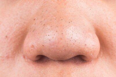 Papiers peints Close-up Of Man Nose