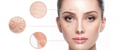 Papiers peints Female face close-up, showing skin problems. Dry skin, acne, wrinkles and other imperfections. Rejuvenation, hydration and skin treatment