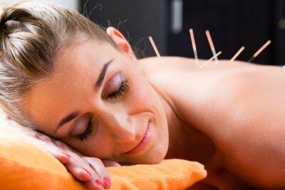 Papiers peints Frau bei Akupunktur mit Nadeln im Rücken