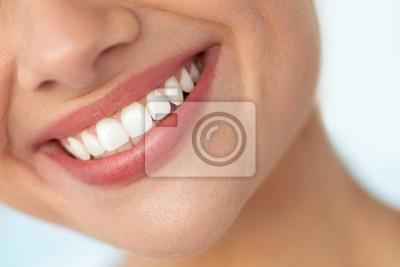 Papiers peints Gros plan d'un beau sourire aux dents blanches. Femme Bouche Sourire. Image haute résolution