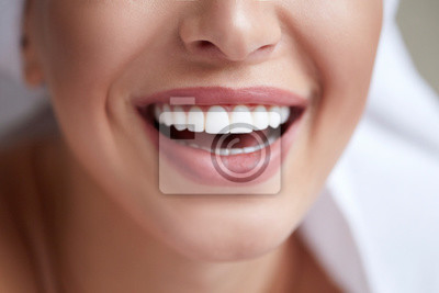 Papiers peints Healthy white smile close up. Beauty woman with perfect smile, lips and teeth. Beautiful Girl with perfect skin. Teeth whitening