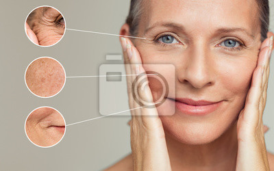 Papiers peints Wrinkles and skin imperfection